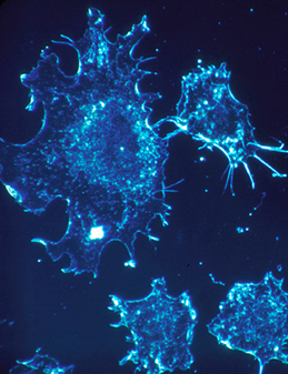 Cancer cells in culture from human connective tissue, illuminated by darkfield amplified contrast, at a magnification of 500x. (National Cancer Institute)